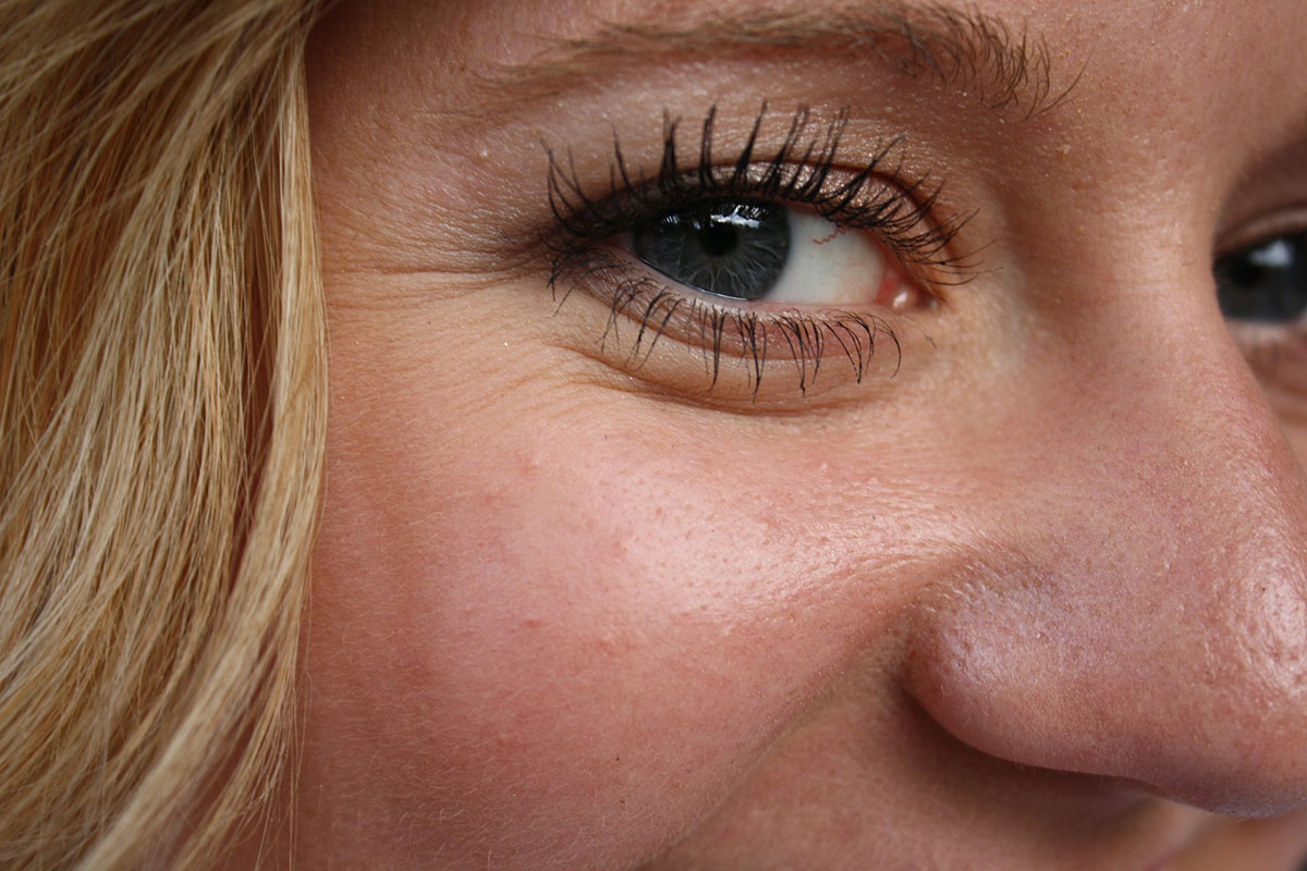 How to Remove Under Eye Wrinkles Fast