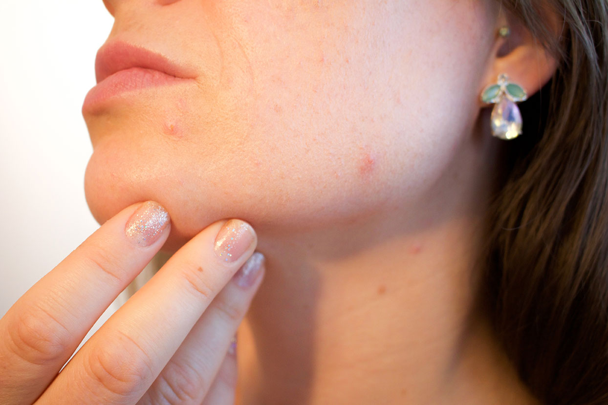 Effective Solutions for Getting Rid of Ugly Acne Scars
